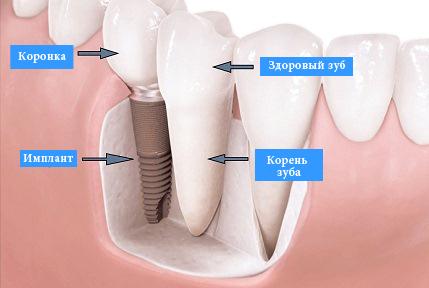 имплант и здоровый зуб