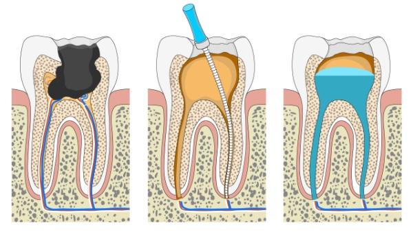 лечение зубных каналов