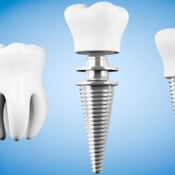 Имплантация зубов. Вопросы и ответы