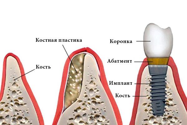 имплантация-с-помощью-костной-пластики