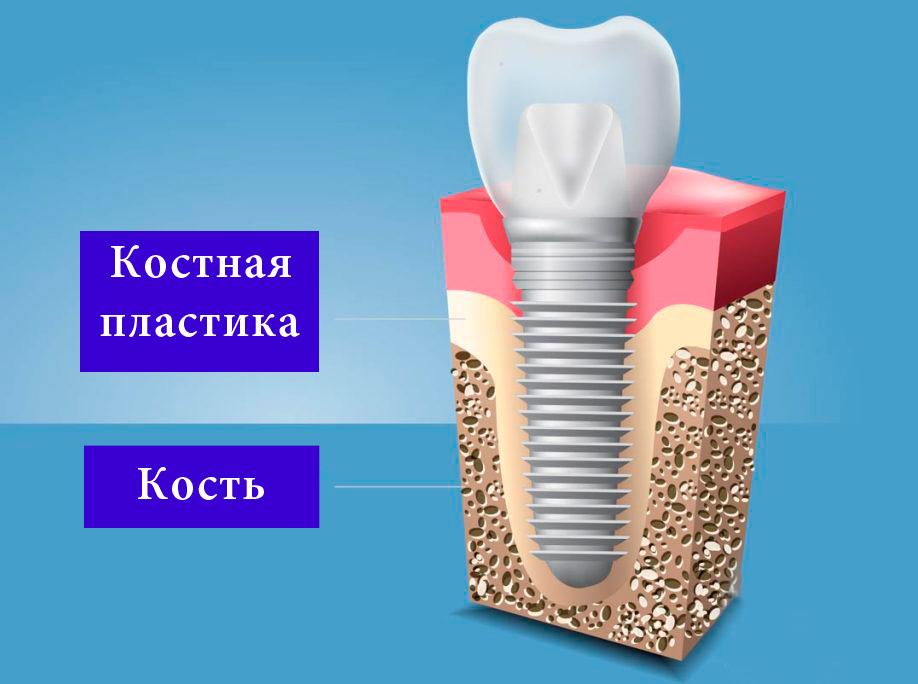 костная-пластика-и-кость