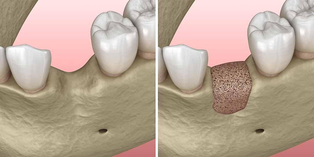 наращивание костной ткани