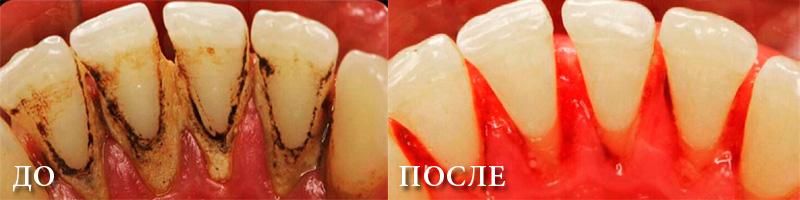 удаление зубного камня до и после