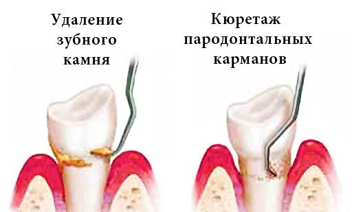 удаление зубного камня и кюретаж