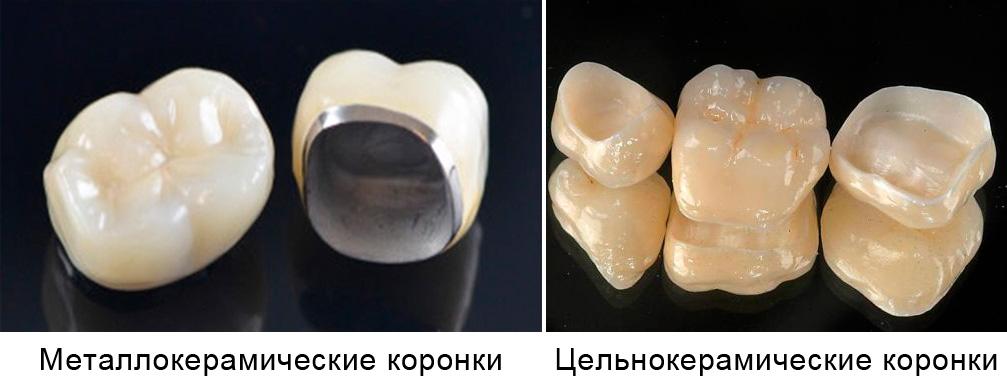 металлокерамические и цельнокерамические коронки
