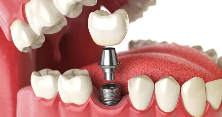 метод имплантации при реставрации зубного ряда