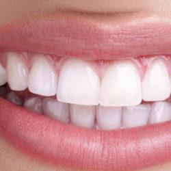 Реставрация зубного ряда