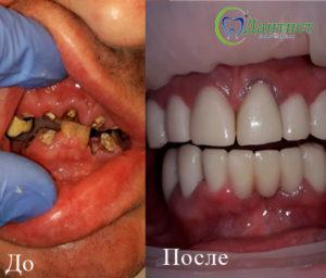 восстановление зубного ряда