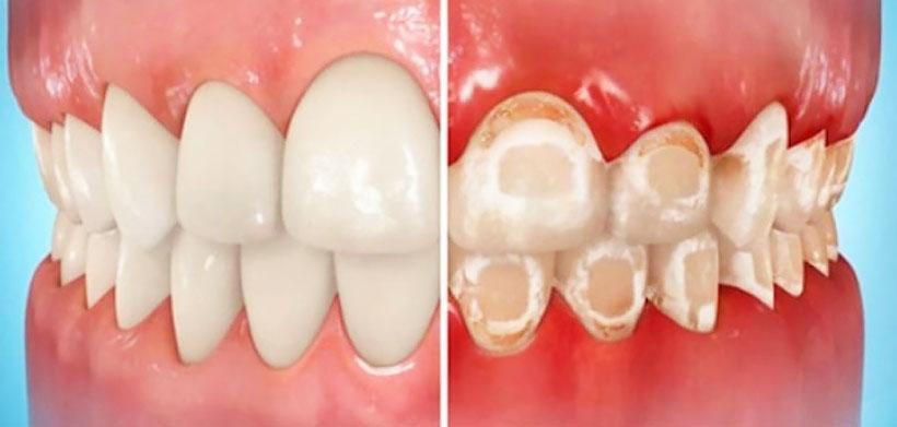 Белые пятна на зубах и ортодонтические аппараты