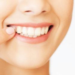 Белые пятна на зубах. Причины появления и лечение