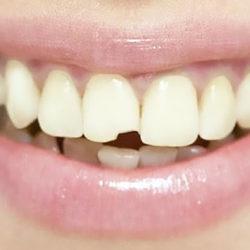 Что делать, если откололся зуб