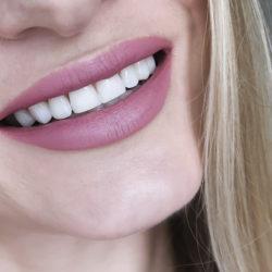 Зачем заменять потерянные зубы